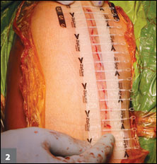 application of the closure device